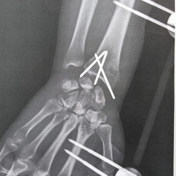 Röntgenfoto van mijn pols